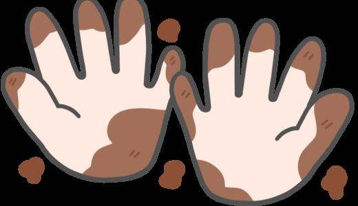 【医療・衛生】汚れた手のかわいいフリーイラスト