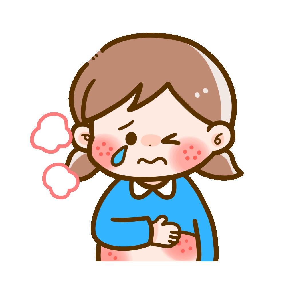 食物アレルギーの症状